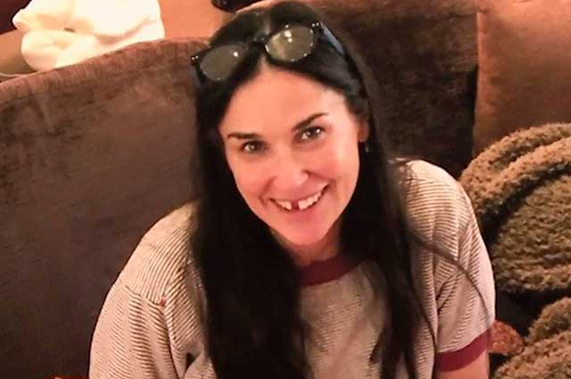 Demi Moore perdió dos dientes por estrés